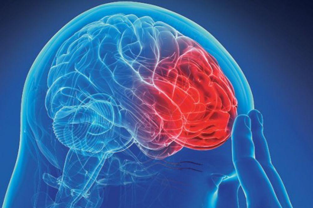 KAKO PREPOZNATI SIMPTOME MOŽDANOG UDARA I KAKO SI POMOĆI