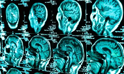 RIJEČ STRUKE: KAKO ZARAZA KORONAVIRUSOM MOŽE DOVESTI DO OŠTEĆENJA MOZGA